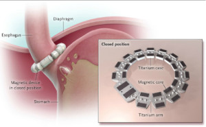 LINX device closed preventing acid reflux
