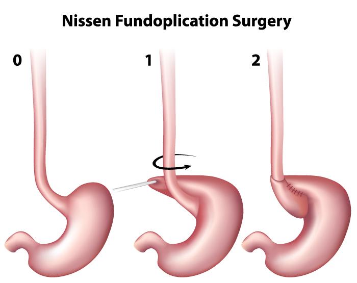 stomach-nissen-fundoplication-surgery
