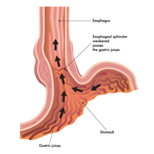 the symptoms of acid reflux