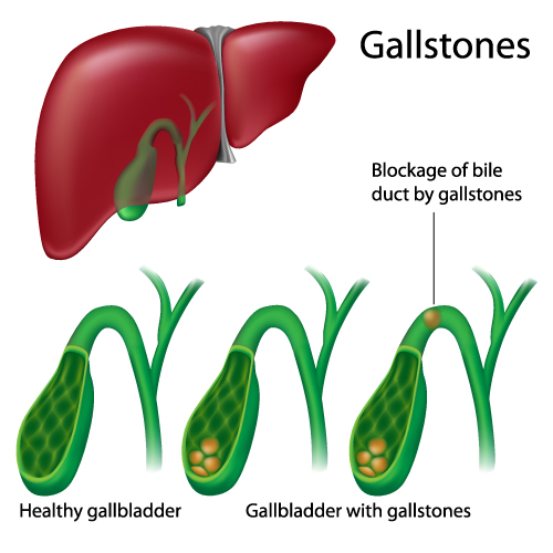 A diagram to explain the blockage of the bile duct by gallstones